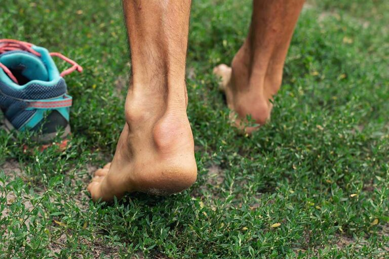 a runner's achilles tendons, with achilles tendinopathy or tendinosis